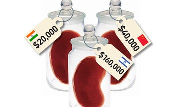 Which Organs Can I Live Without, And How Much Cash Can I Get For Them?