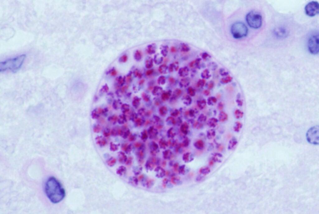 """_Toxoplasma"