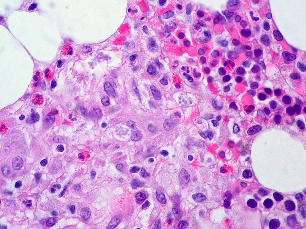 Fungal Infection in Bone Marrow