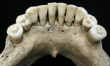 These 1,000-year-old, blue-specked teeth could rewrite medieval history