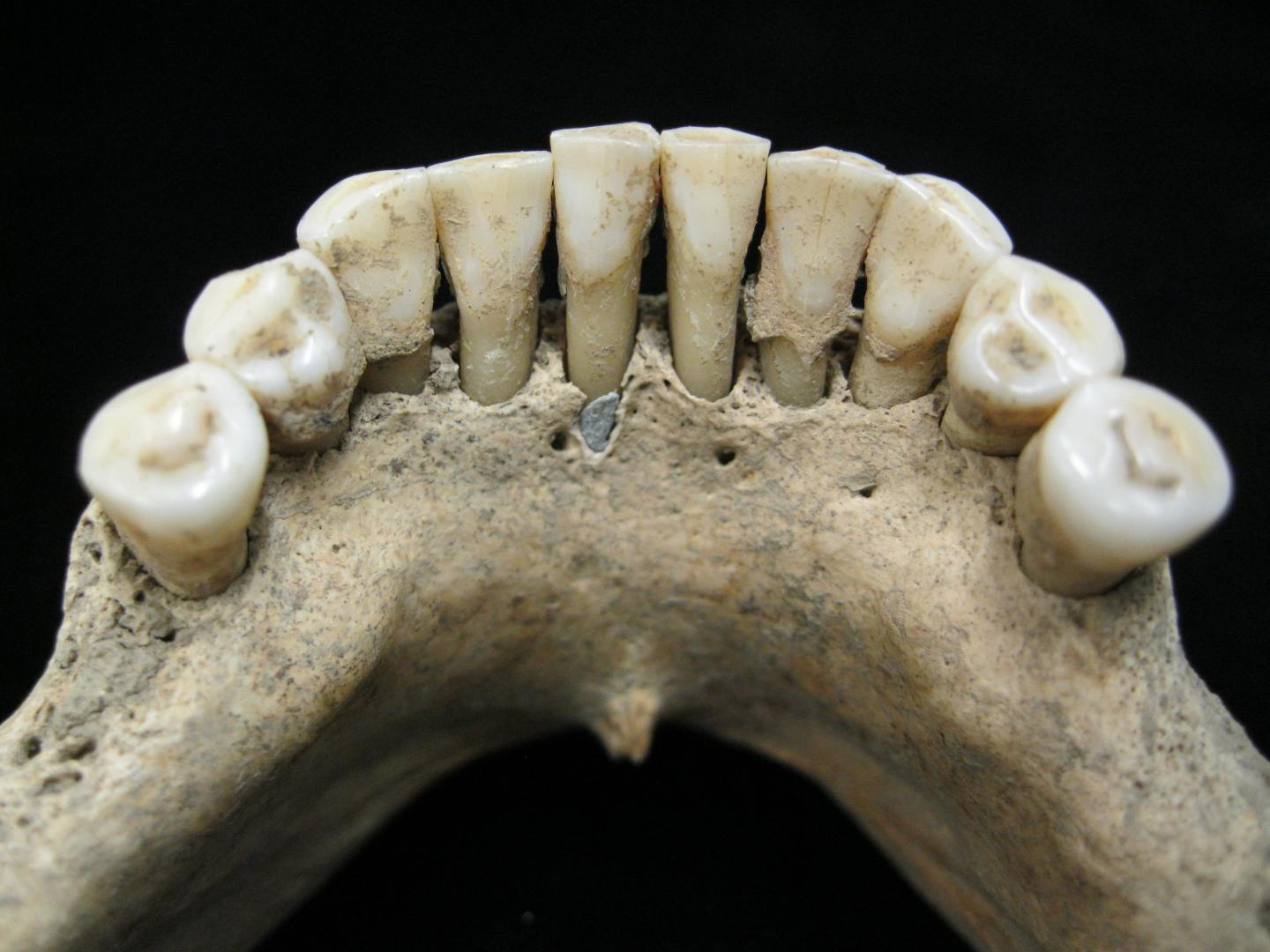 Dental calculus jaw and teeth photo