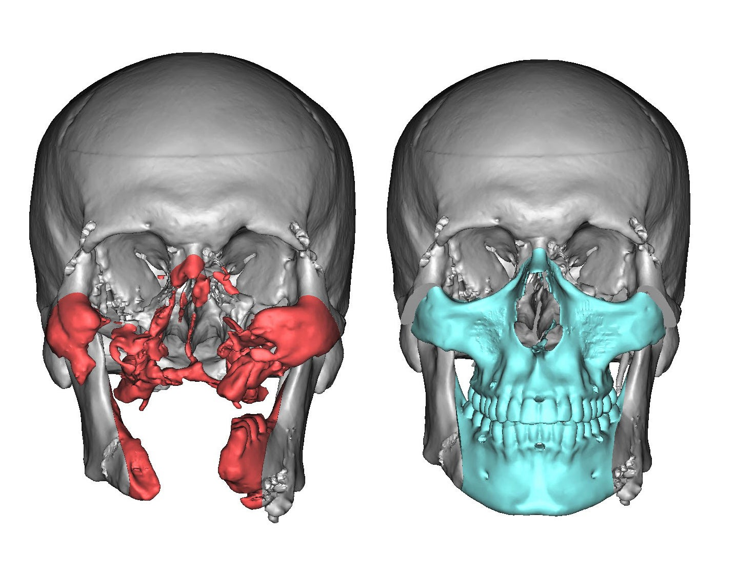 How 3D technology is revolutionizing face transplants