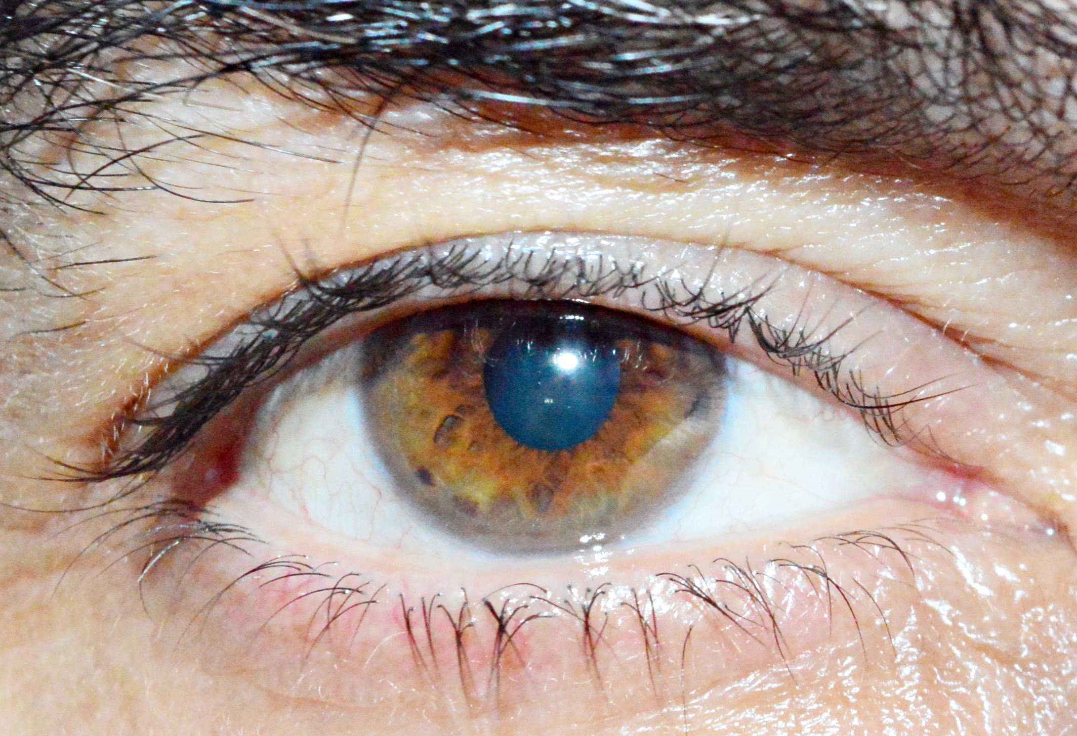 'Poppers' might permanently damage your eyes