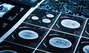 X-rays could provide crucial clues in identifying domestic violence