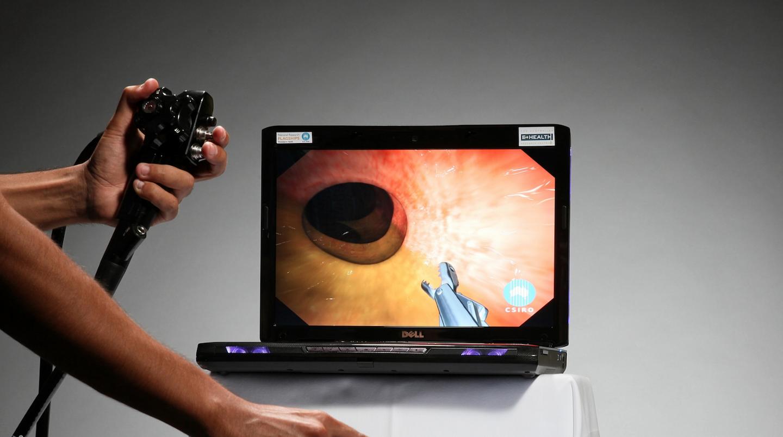 Colonoscopy simulation alternative FIT