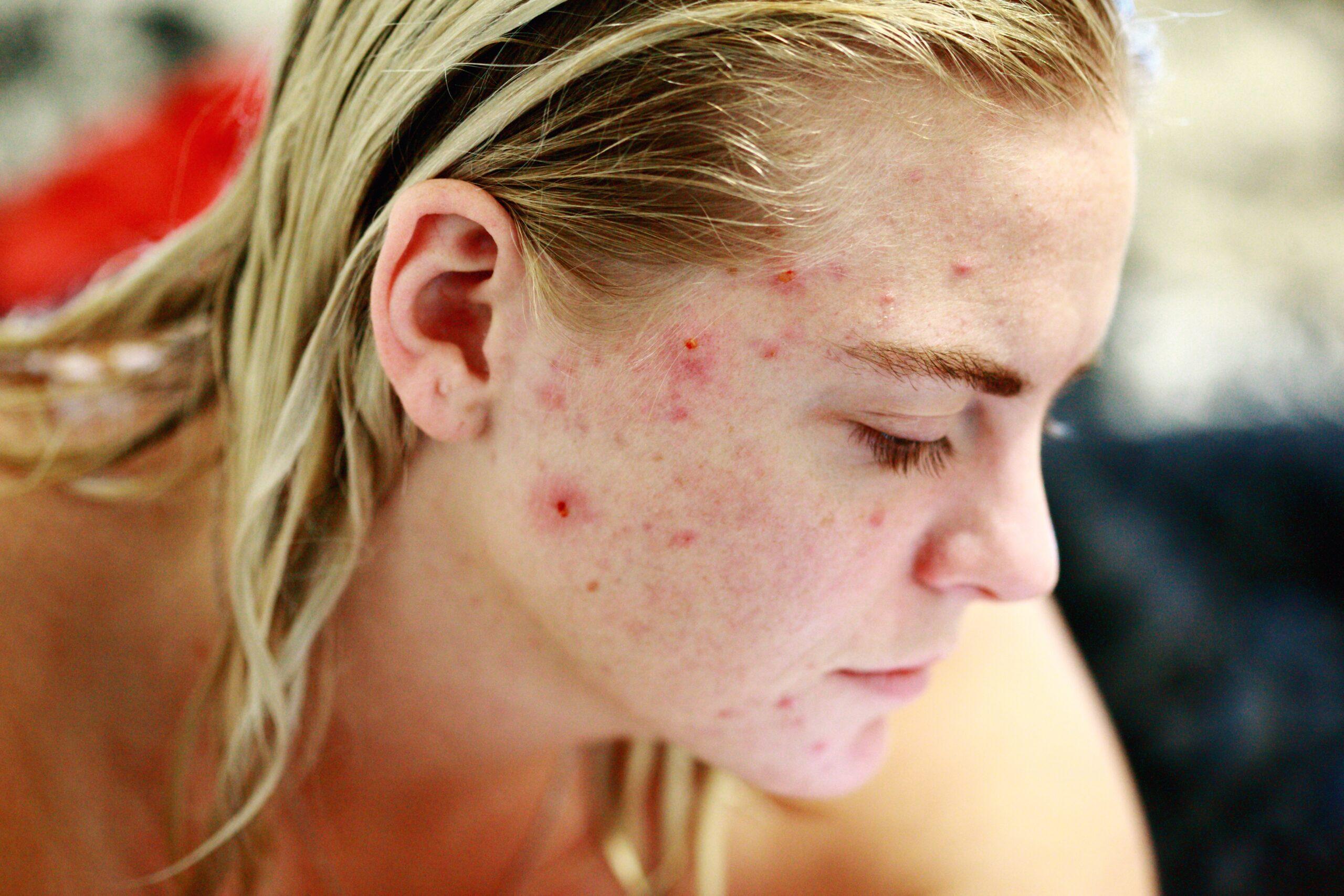 acne pimple zit human skin