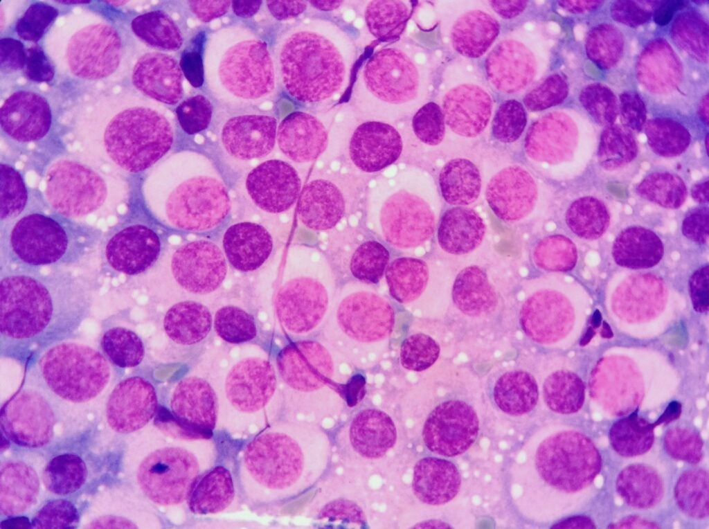 Stained CTVT cells viewed under the microscope