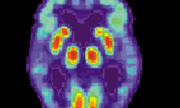 Ultrasound Restores Memory To Mice With Alzheimer's