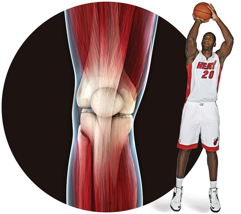 Building Better Knees For The NBA