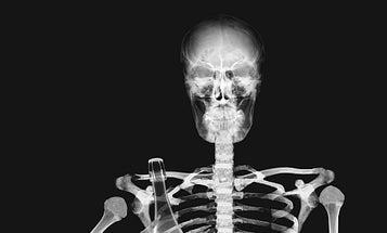 Will Drinking Carbonated Beverages Weaken My Bones?