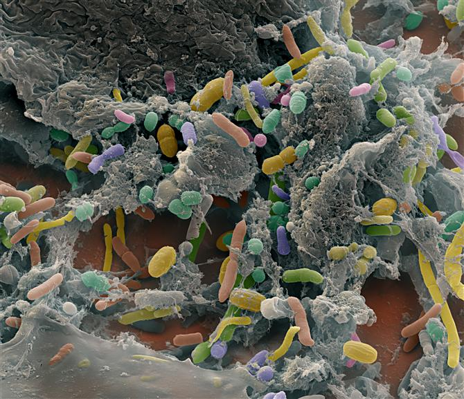 Researchers Restored A Colony Of Microbes In The Gut