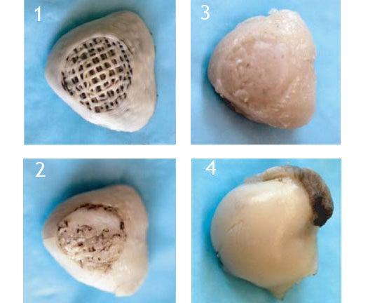 Bio-Scaffold Regenerates Rabbit Joints In Vivo While the Rabbits Run