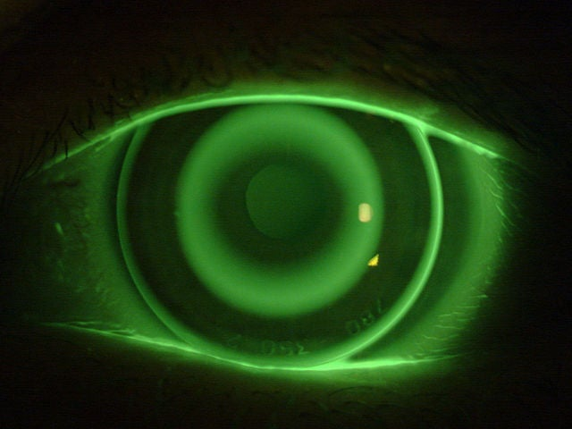 Put A Camera On Your Eyeball