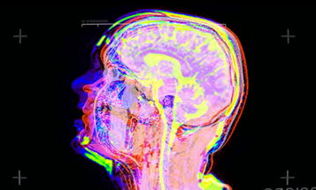 Look At This Musician's Brain In An MRI Scanner [Video]