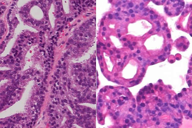 Prostate Cancer 'Organoids' Could Help Personalize Treatment