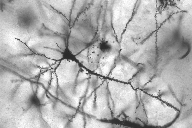 Branch-Like Dendrites Function As Mini-Computers In The Brain