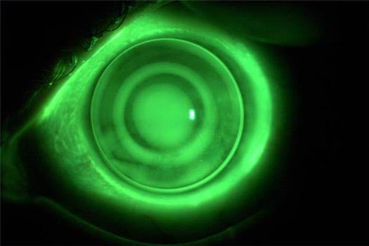 Fix Farsightedness by Sleeping in Your Contacts