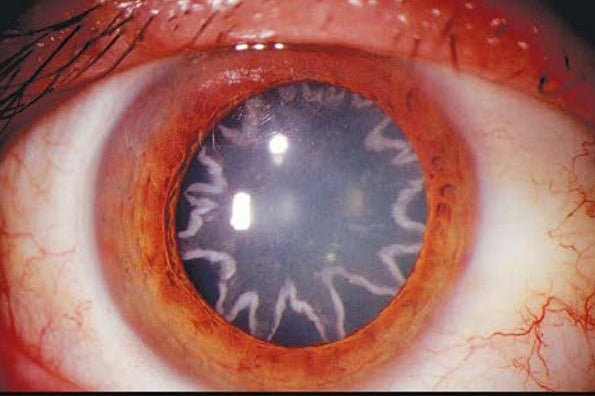 Star-Shaped Cataracts And Other Amazing Images From This Week