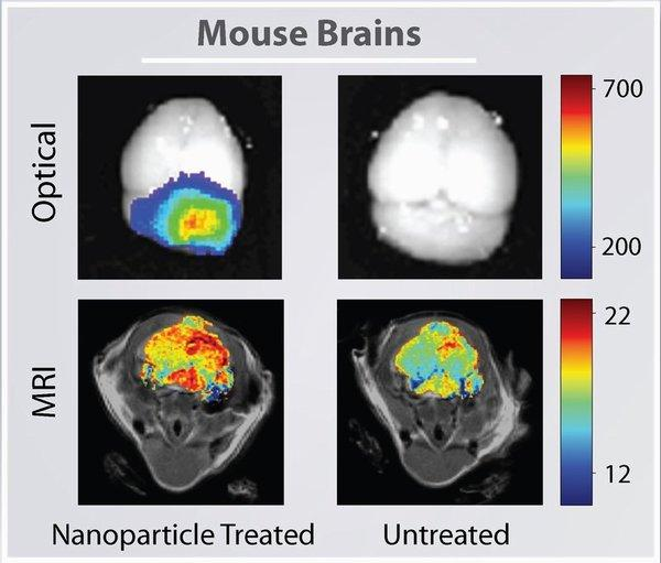 Scientists Paint Brain Tumors With Nanoparticles for More Precise Removal