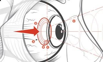 Contact Lens Sees Eye Disease Before It Strikes