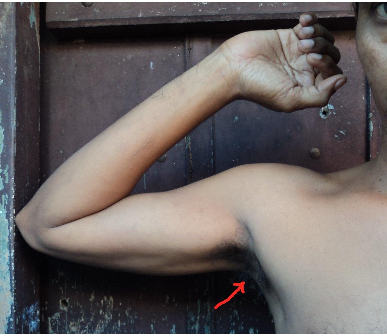 Antiperspirants, Deodorants Change Your Armpit Microbiome