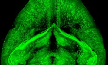 Scientists Create See-Through Rodents For Brain Science