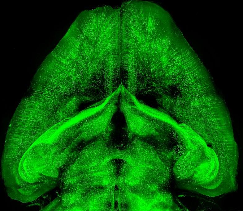 transparent mouse brain