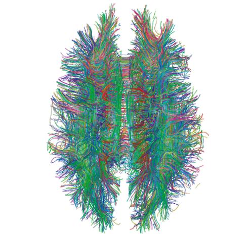 To Build Multitasking Robots, Mimic The Human Brain
