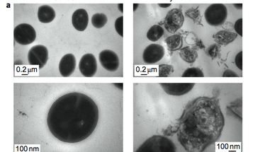 Degradable Nanoparticles Search, Intercept and Destroy Antibiotic-Resistant Bacteria