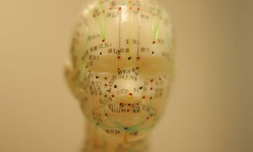 Why it's so hard to figure out if acupuncture actually works