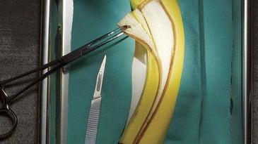 banana operation