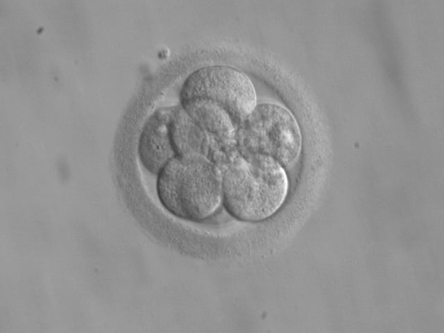 Baby Born From 20-Year-Old Frozen Embryo