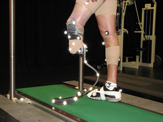 Study Proves That Specialized Prosthetic Legs Grant No Advantage In Sprinting