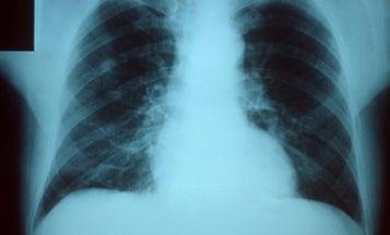 How people die from the flu