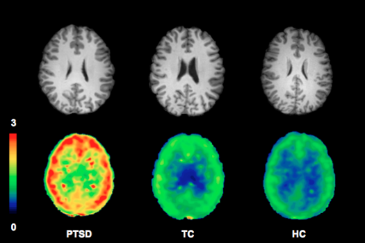 A Cannabinoid That Looks Like THC Could Be Key To Diagnosing PTSD