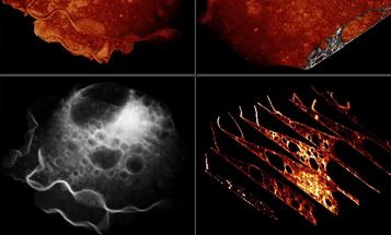 Video: New Microscope Produces 3-D Movies of Live Cells In Action