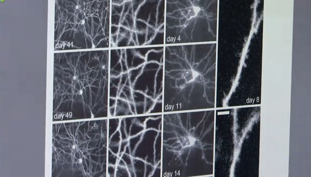 New Imaging Method Opens a Long-Term Porthole Into the Deep Brain
