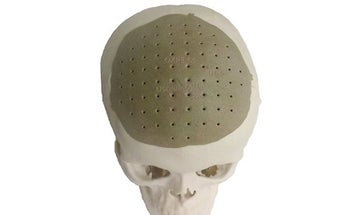 3-D-Printed Implant Replaces 75 Percent Of Man's Skull