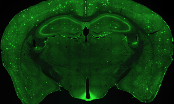 Lost Mouse Memories Found Thanks To Lasers