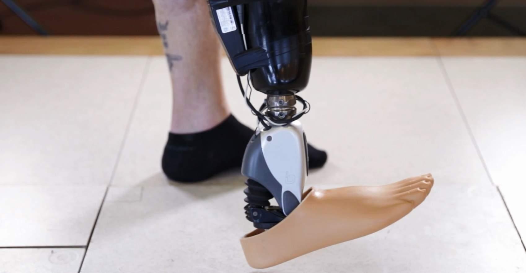 Ossur's Proprio Foot