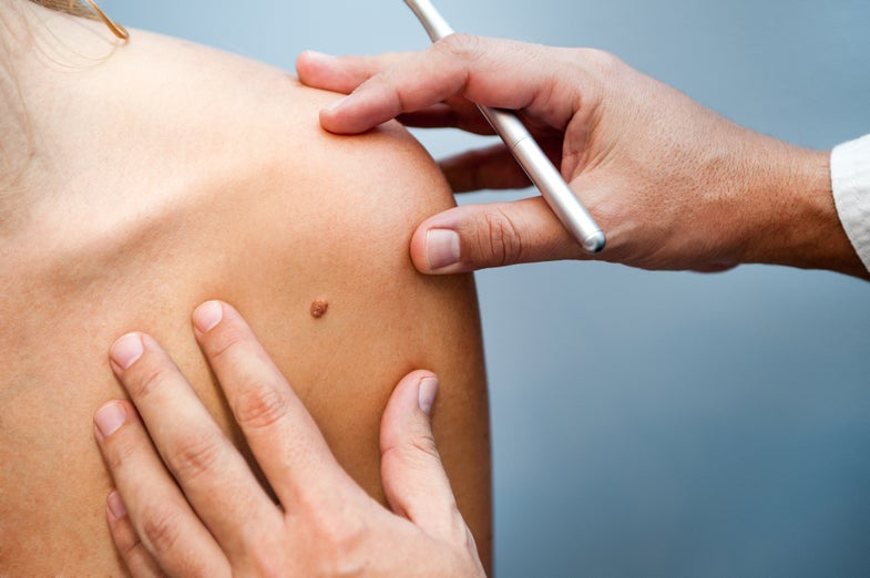 Checking yourself for melanomas? You might not be looking for the right thing.