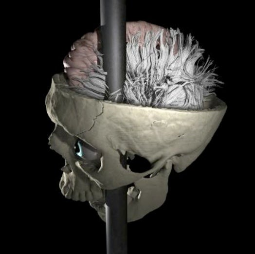 Phineas Gage, Neurology's Most Interesting Case, Gets His Head Re-Examined With a New Neural Map