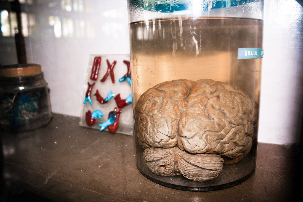 If you grow a brain in a lab, will it have a mind of its own?