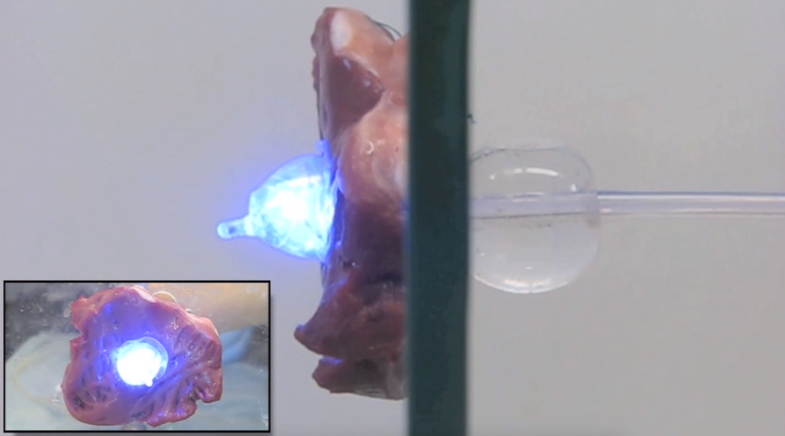 UV Light And Balloons Can Plug Holes In Your Heart Or Other Organs
