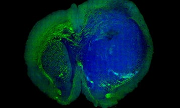 New Imaging Technique Shows Surgeons Where Tumors End And Brains Begin