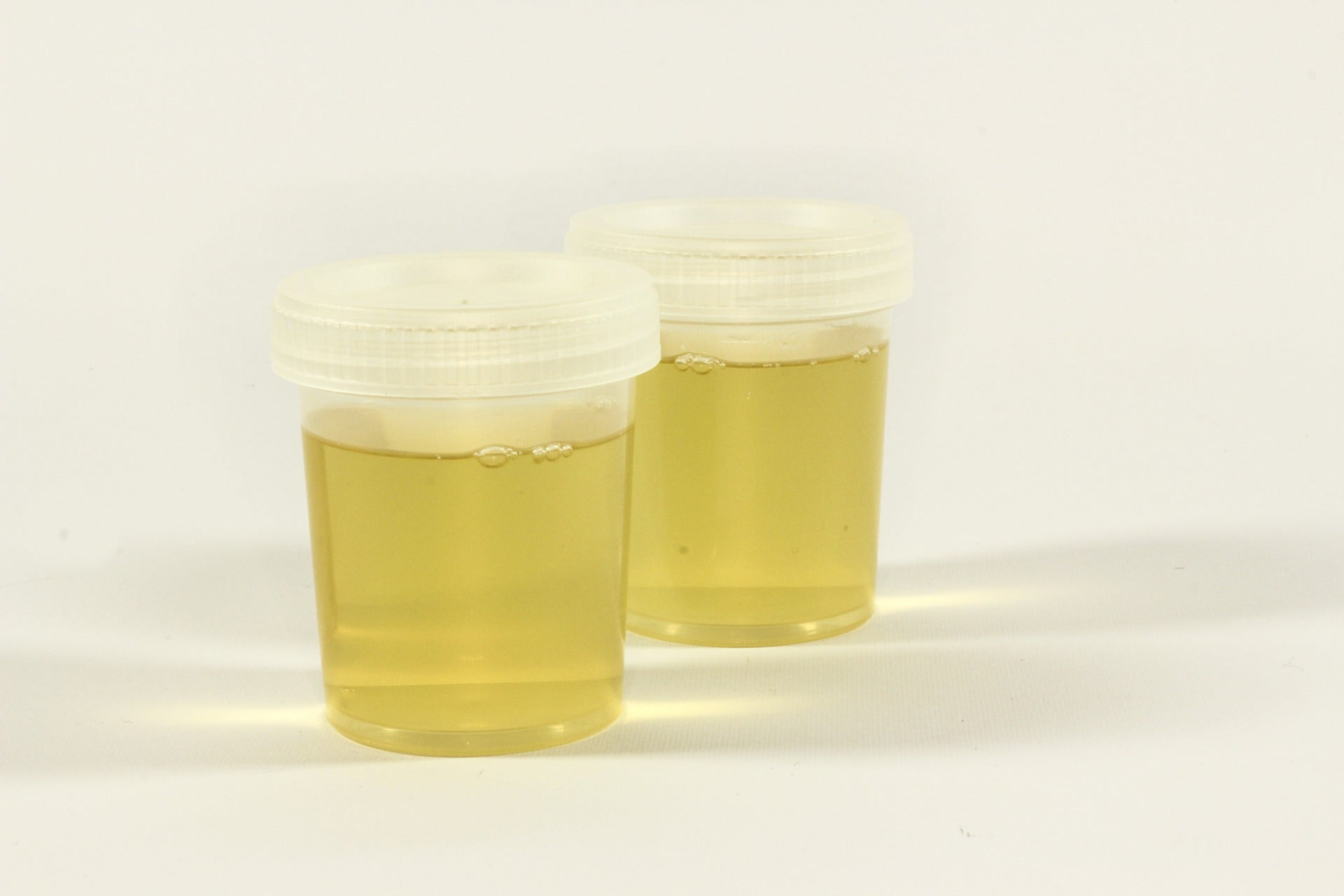 Is urine actually sterile?