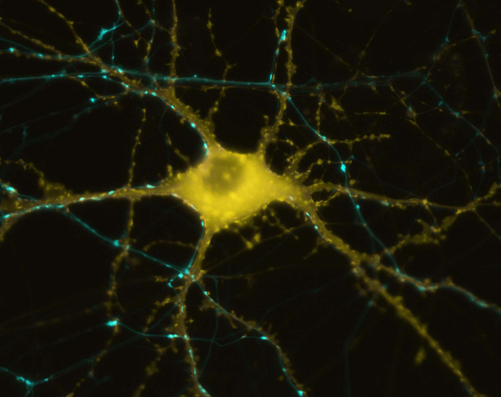 """Wet Computer"" Literally Simulates Brain Cells"