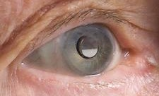 FDA Approves First Telescopic Eye Implant to Treat Blindness