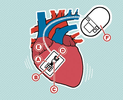 A Pacemaker Powered By Heartbeats