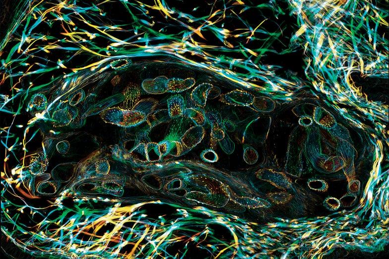 Big Pic: A Beautiful Look At Parasitic Worms